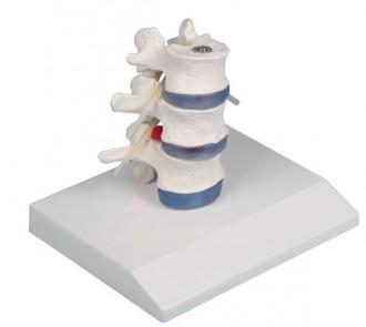 Vertèbres lombaires démontables avec hernie - Devis sur Techni-Contact.com - 1